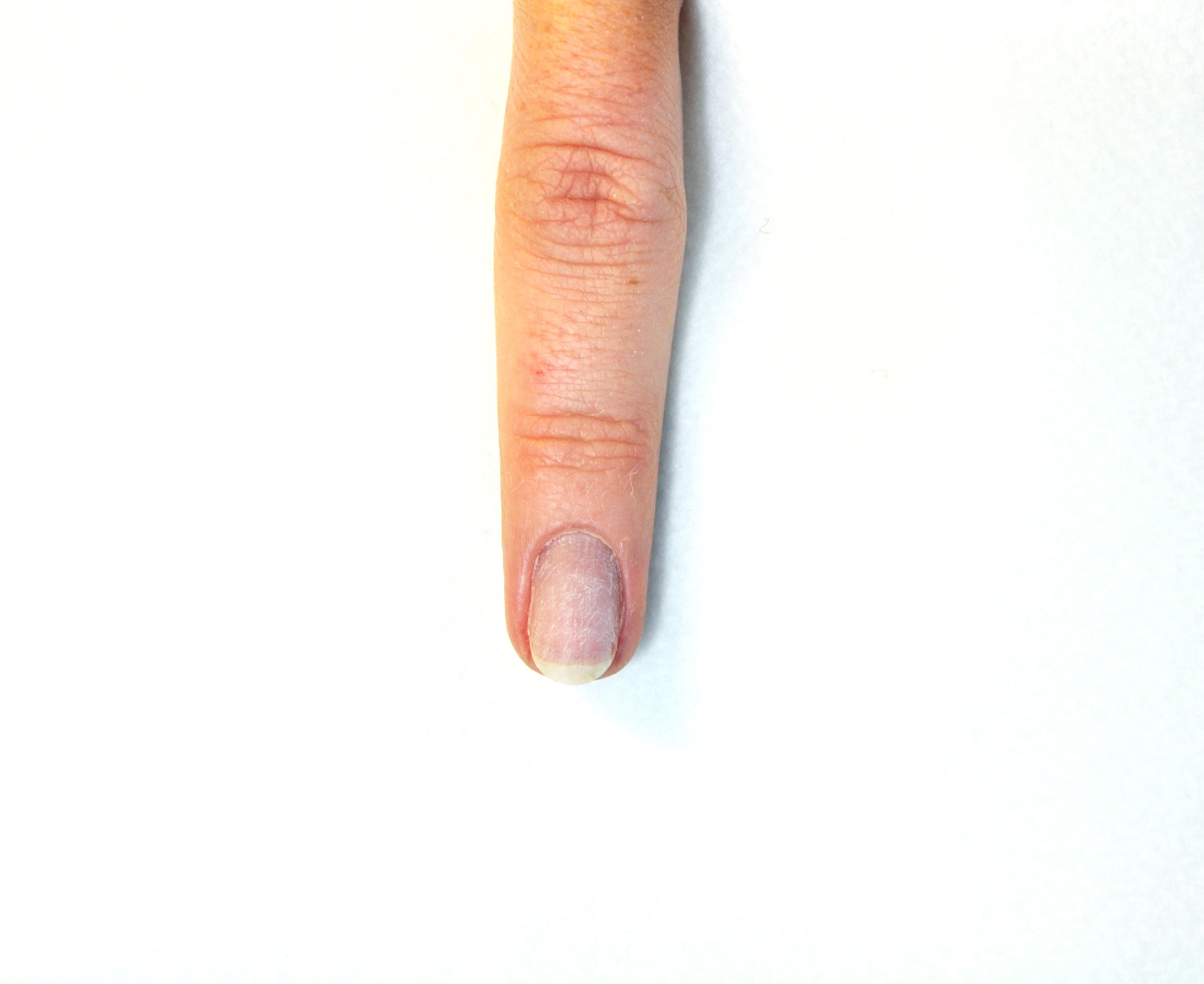 Gothic Nails Black and White | CNI-Ihr Partner in Fragen ...